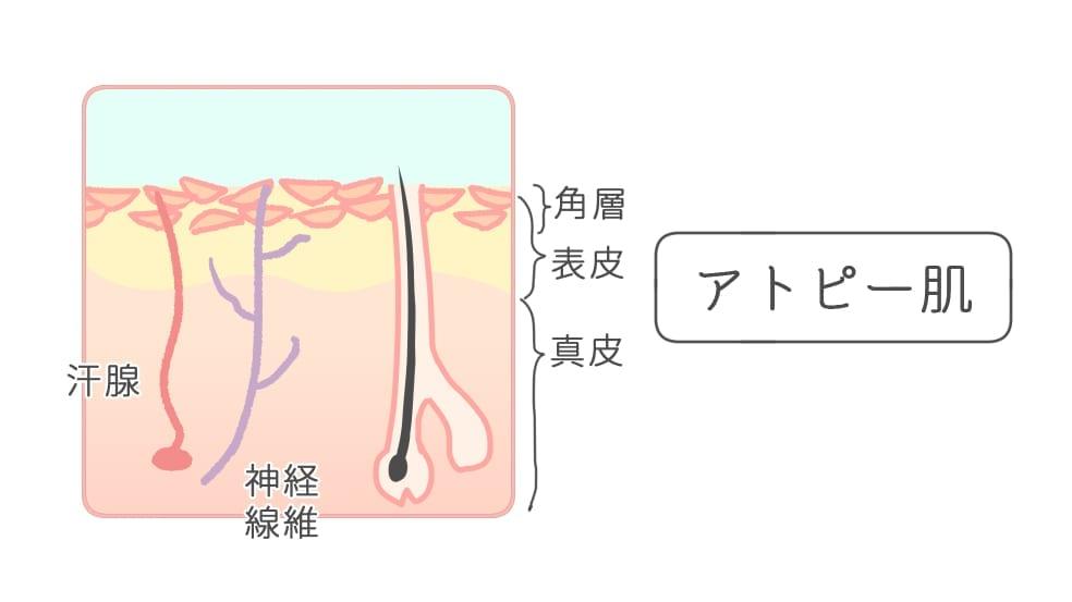 脱毛 肌荒れ(アトピー肌)